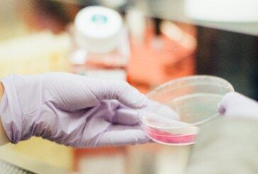 Hrvatska: Serološki testovi na 1100 ispitanika – Koliko je preboljelo Covid19 te razvilo antitijela protiv virusa?